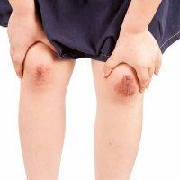 Heridas. Erosión en la rodilla