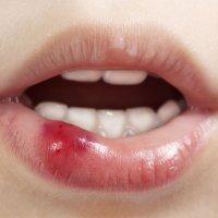 Heridas en los labios y boca
