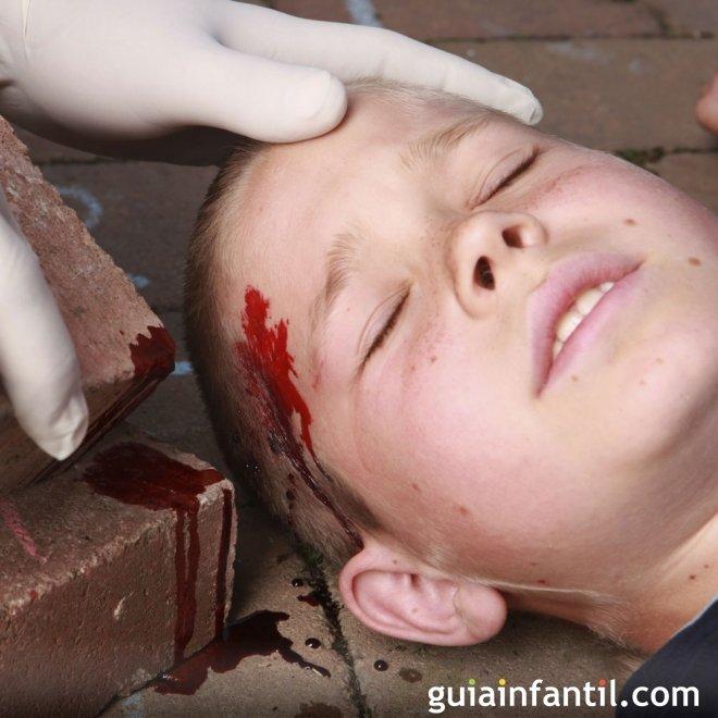 Heridas. Cortes en la cabeza