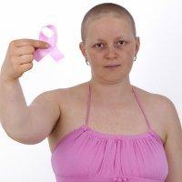 Cáncer de mama. Prevención y curación en la mujer joven