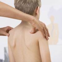 Dolor de espalda infantil: ¿cuándo acudir al médico?