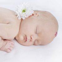 Por qué nacen los niños con hemangiomas en la piel