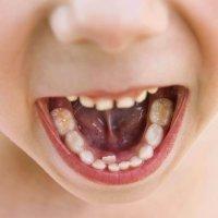 Por qué hay niños con una segunda fila de dientes