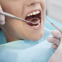 Los dientes definitivos de los niños