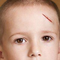 Las heridas y cortes en los niños