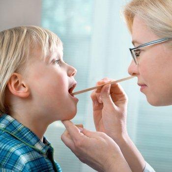 Cuándo se debe operar de anginas a los niños