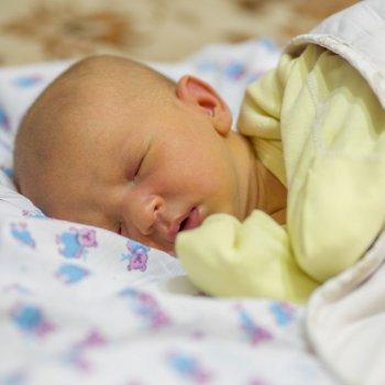 Causas de ictericia en el recién nacido