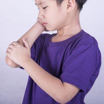 Celulitis en los niños. Causas y tratamiento