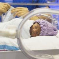 Niños que nacen con problemas en el intestino