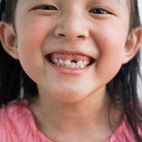 El orden de caída de los dientes de leche en los niños