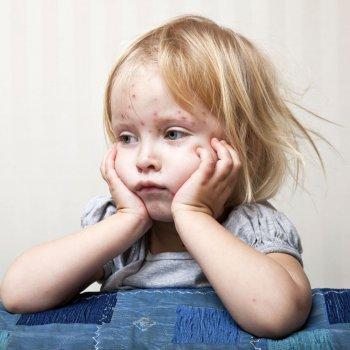 Rubeola en niños