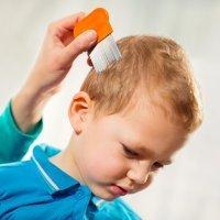 Piojos o Pediculosis: cómo aplicar cada tratamiento