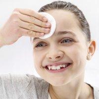 Causas del acné en la infancia
