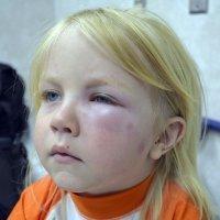 Tipos de reacciones alérgicas a las picaduras de insectos en los niños