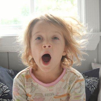 Por qué hay niños con ojeras
