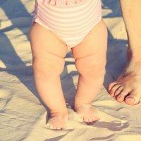 Niños con las piernas arqueadas