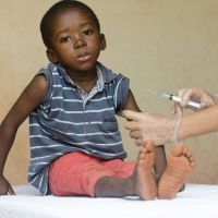 Los niños que viven y conviven con el sida