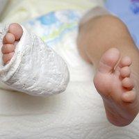 Las fracturas que pueden ser señales de abuso infantil
