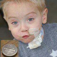 Un bebé sufre lesiones irreparables por algo que todos tenemos en casa