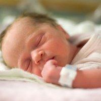 Bebés que nacen con una vuelta de cordón umbilical