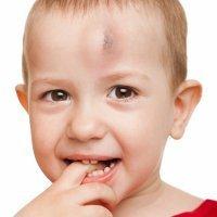 El niño se ha golpeado en la cabeza, ¿cómo actuar?