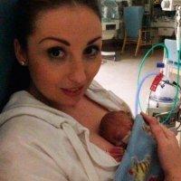 El bebé más prematuro del mundo antes y después