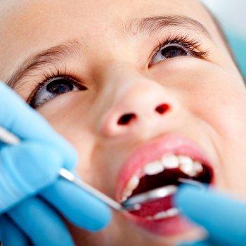 El sellado de los dientes, prevención contra la caries infantil