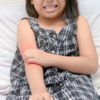 Cómo aliviar los picores provocados por la dermatitis infantil