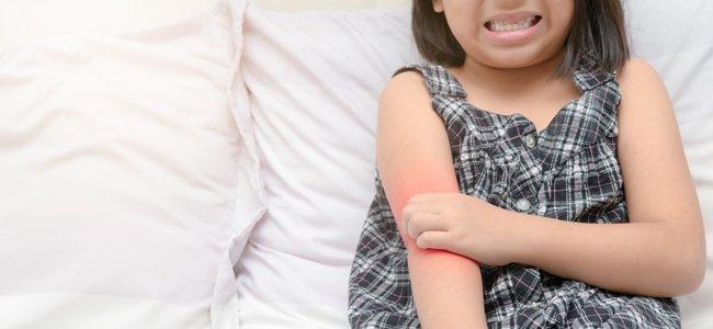 Infecciones en la piel causas
