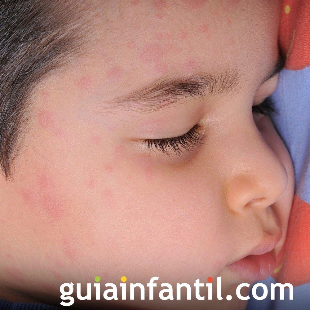 Observa si tu hijo tiene algún problema en la piel