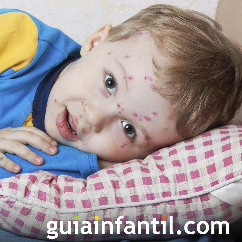 Varicela. Enfermedades infantiles comunes