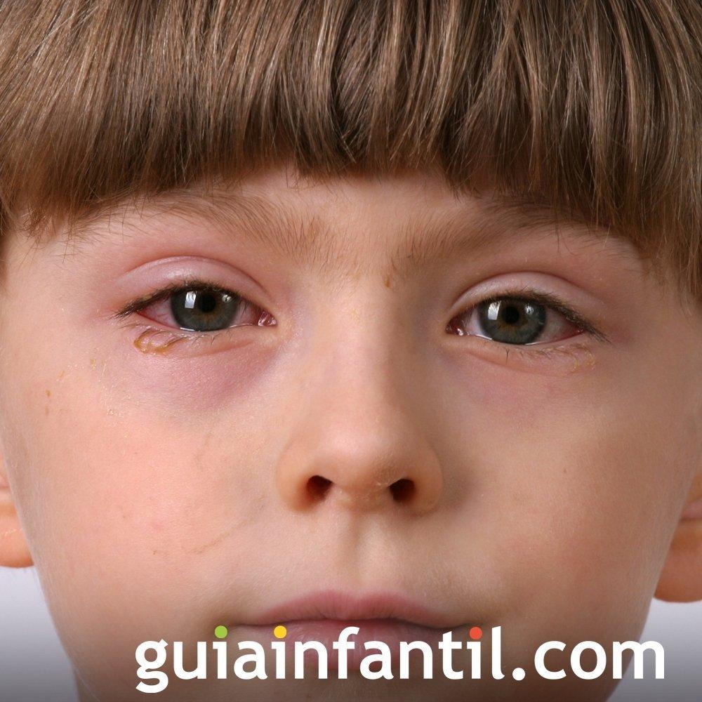 Enfermedades de los niños. Conjuntivitis