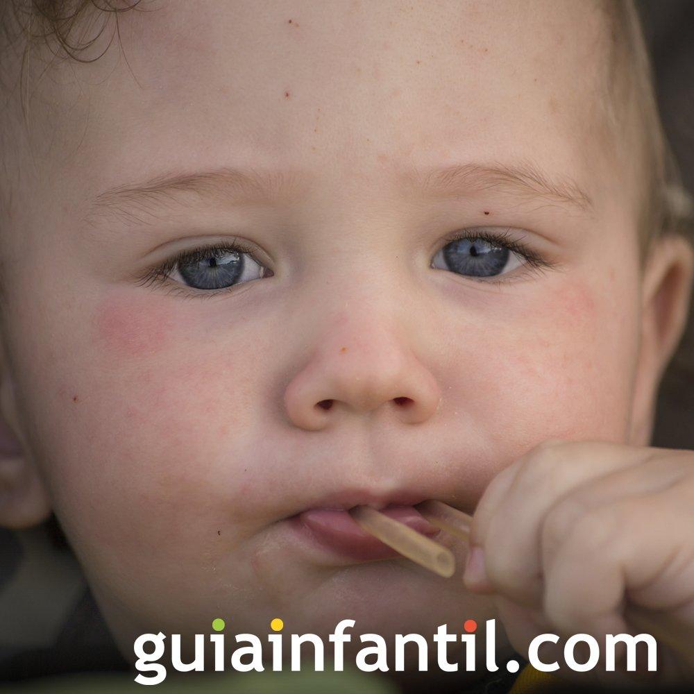Enfermedades de bebés y niños. Dermatitis infantil