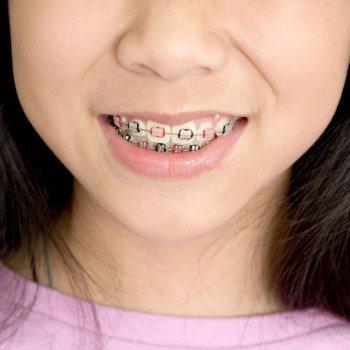 La ortodoncia y los niños
