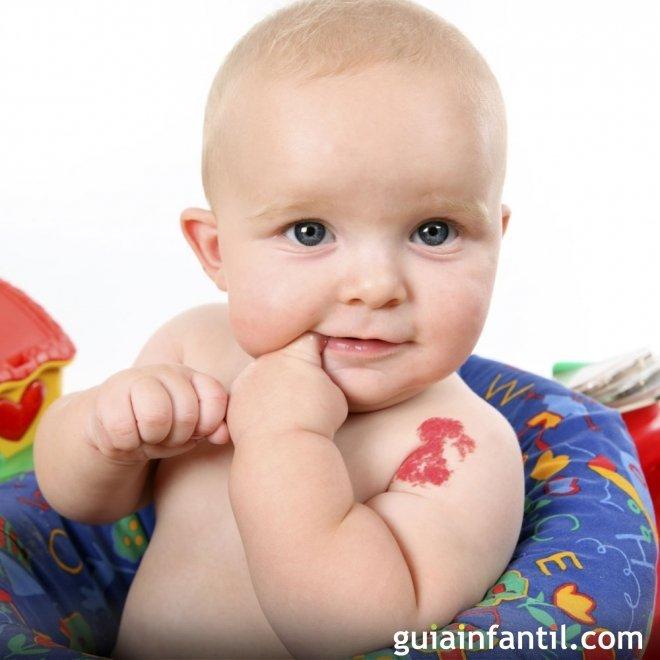 Manchas de nacimiento en los bebés