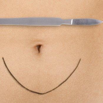 Cuidados de la cicatriz tras una cesárea