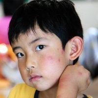 Qué es la malaria y cómo afecta a los niños