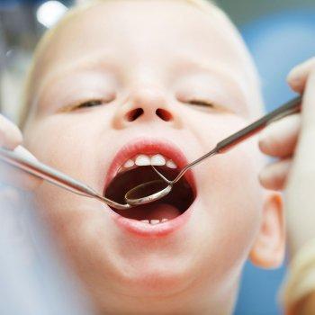 Empastes en los dientes de leche