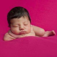 Vello en el cuerpo del recién nacido