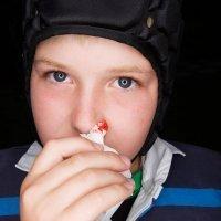 Hemofilia en la infancia