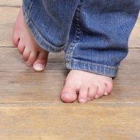 Cómo prevenir los hongos en los pies de los niños