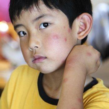 Alergia en los niños a picaduras de insectos