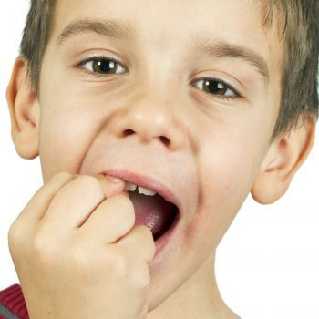 Accidentes y rotura de dientes en la infancia