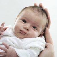 Test de APGAR. Puntuación del recién nacido