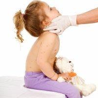 Varicela en niños y bebés