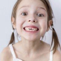 Por qué hay dientes de leche que no se caen en la infancia