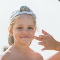 Trucos para eliminar las espinillas de los niños. Acné infantil