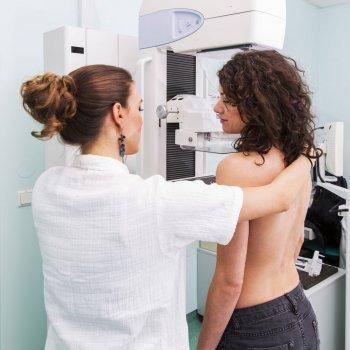 Qué es una mamografía y cuándo hay que realizarla