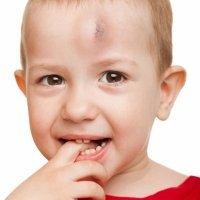 Tres falsos mitos de los traumatismos craneales en niños