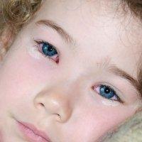 Los peligros de los punteros láser para los niños